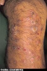 皮膚炎だけでなく全身に症状が出ることもある、大人の