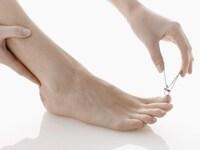 巻き爪を予防する正しい爪の切り方 [皮膚・爪・髪の病気] All About