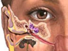耳かきによって耳垢を押し込むのは「耳垢塞栓」の原因の1つに