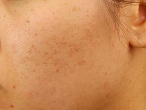 専門的な治療でニキビ跡を消す、美容皮膚科へGO!