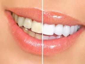 黄ばんだ歯とぷっくりと腫れた真っ赤な歯茎は、若作りの努力を台無しに