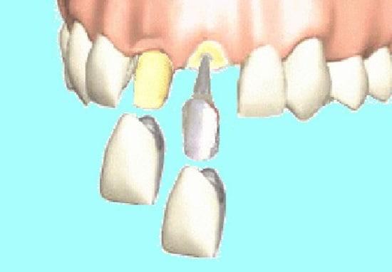 左が「被せ物」。自分の歯に白い色の被せ物を被せるだけ。右が「差し歯」。大きな虫歯で、左のような歯の形に出来ない時に神経を抜いた穴に柱を差し込んで土台を作り、さらに被せ物を被せている