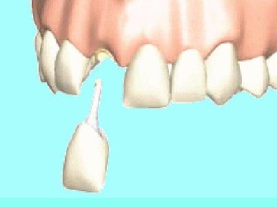差し歯は、神経を取った後の歯の根の部分の穴に土台が柱のように差し込まれている。取れてしまうと中の柱も一緒に抜けてくることがある