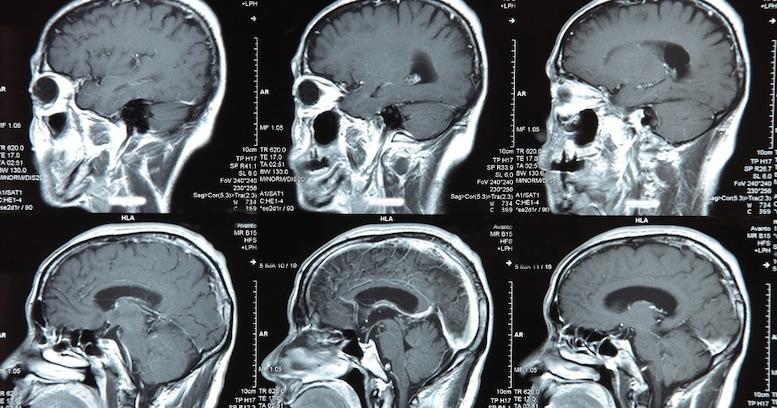脳は効率的にさぼる!生命維持を優先させるために脳がやっていることとは?