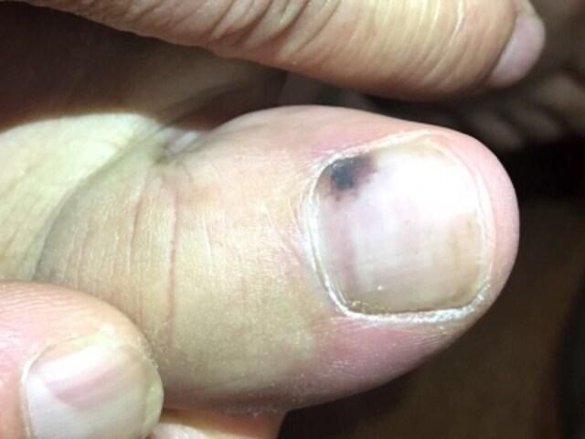 爪が黒くなってきたという理由で受診する患者さんで一番多い原因は爪の下の出血。このように爪の一部が赤黒くなる。