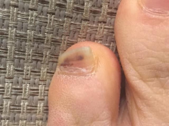 6週間経過後。黒い部分が爪の先の方に移動してきているのがわかる。爪の下の出血の場合、時間とともに黒い部分が外に押し出されてくるので、治療の必要性はない