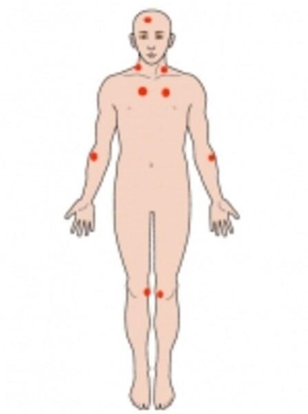 赤い点が圧痛点です。ここを軽く押さえて痛いとき…