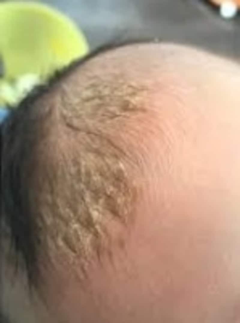 赤ちゃんの頭皮にできた脂漏性湿疹