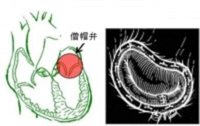 原因疾患の治療は大切です。たとえば僧帽弁閉鎖不全症による心不全では、弁をきちんと治すことが最も有効な治療となります