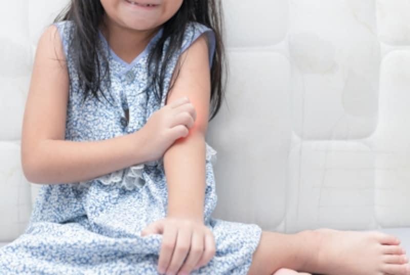 カビは気管支喘息や蕁麻疹の原因にもなっています。もしもと思われる方は受診を!