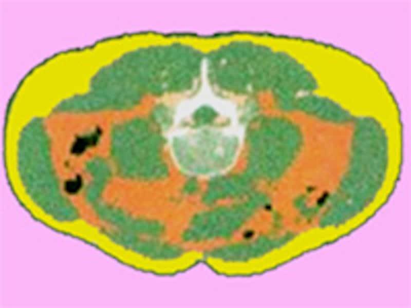 輪切りの腹部の映像
