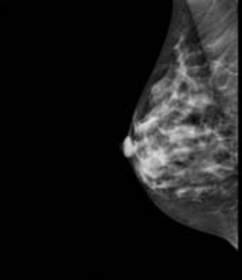 マンモグラフィーで見た乳房