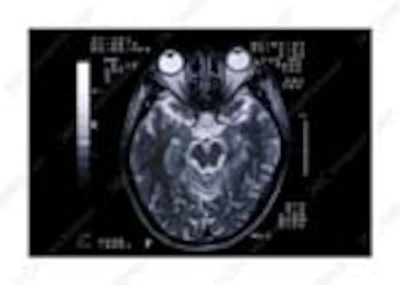 MRIは磁気で調べます!