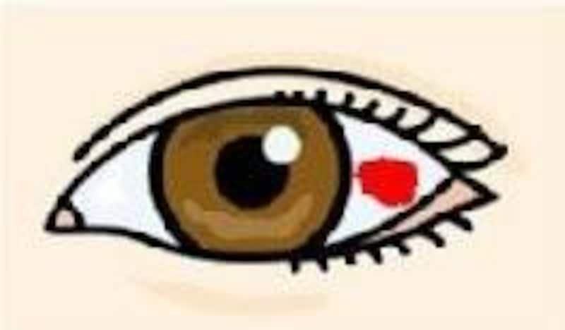 白目が赤く染まるのは結膜下出血