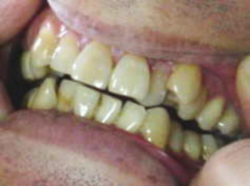 歯のホワイトニング前