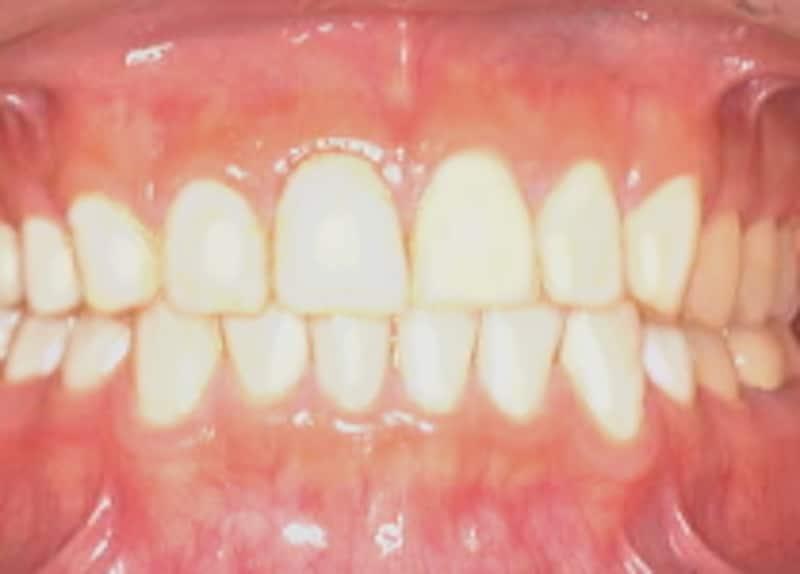 白い歯と綺麗な歯並び