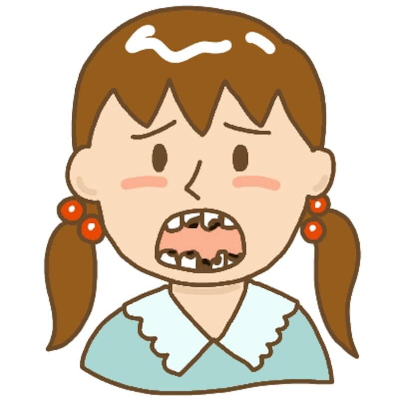 虫歯のこども