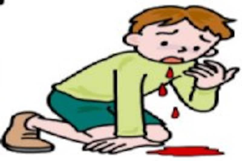 鼻血の対処法