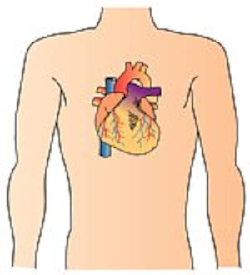 心臓を栄養する血管が詰まってしまう病気