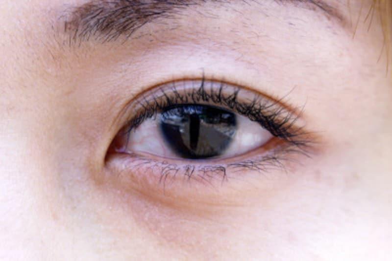 アレルギー 目の下の腫れ 急にまぶたが腫れる病名は?