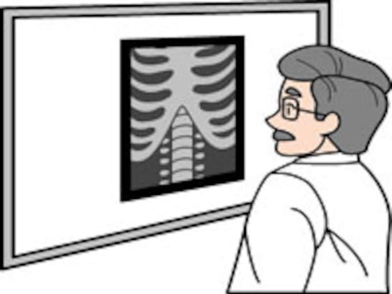 放射線治療の位置づけ