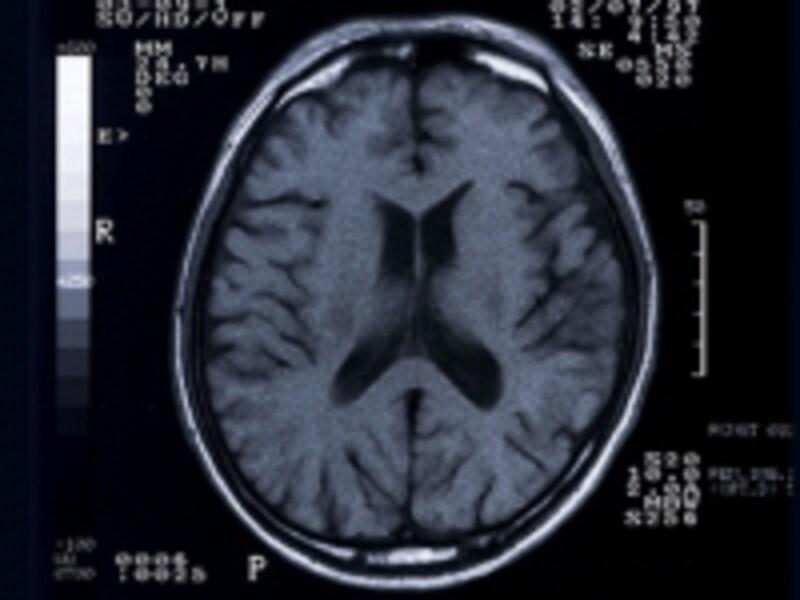 脳の周りにある部分が髄液です。脳の中の黒い部分にも髄液があります。