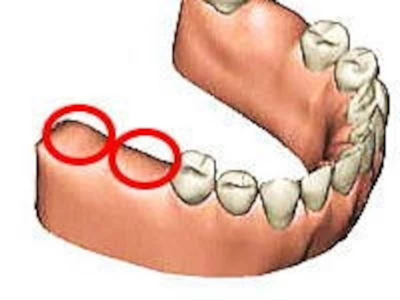 奥歯2本が連続してなくなると入れ歯が選択肢に入ってくる