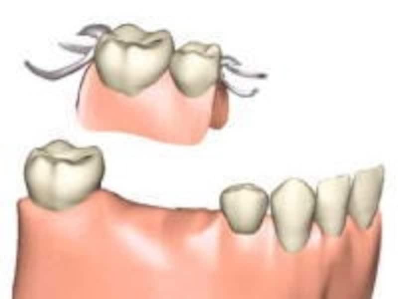 入れ歯は主に人工の歯、歯ぐき、固定金具の「バネ」の3つから出来ている