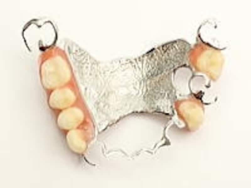 違和感が少なくなるように上あごの内側を金属に置き換えることが多い