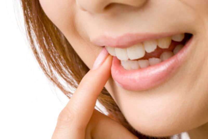 口内炎の画像・写真