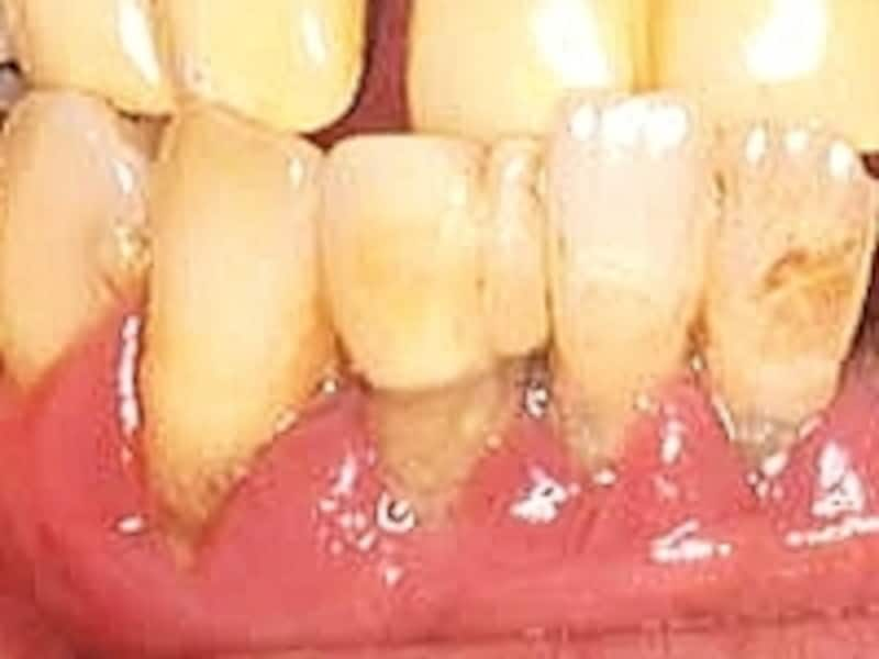 出血しやすい歯茎は腫れていることが多い