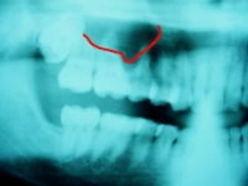 上あごの奥歯の先には空間があり感染を起こすと膿が溜まることがある