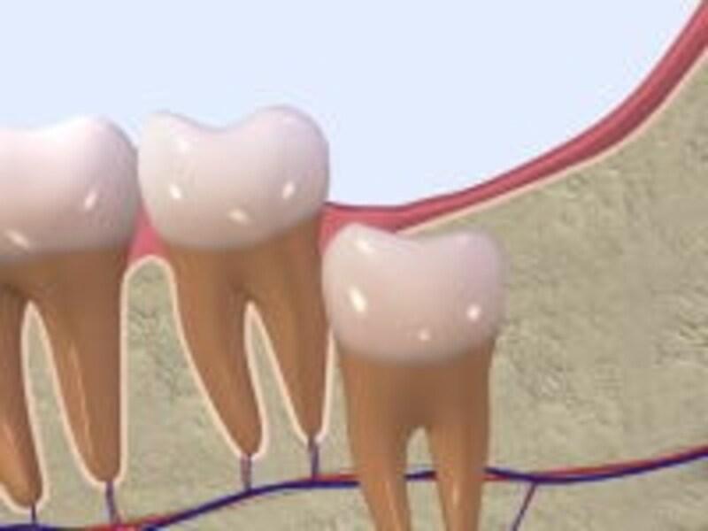 真っすぐ生えていれば、奥歯と同じように抜歯が可能