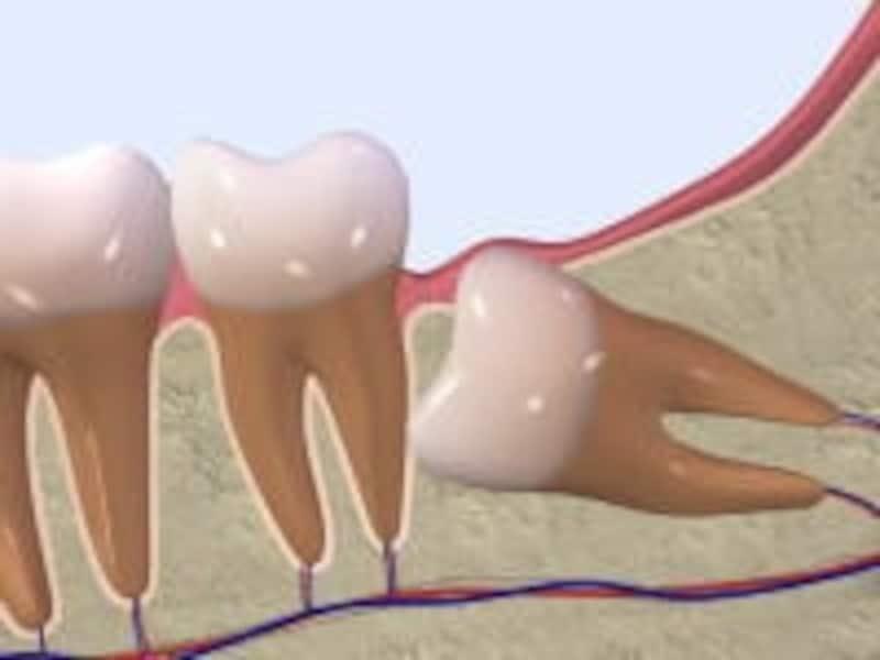 【親知らずの主な生え方その3】完全に水平になり前の歯を押すタイプ。抜歯の難易度は高い。