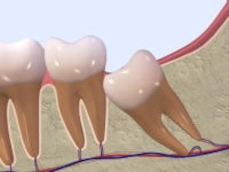 【親知らずの主な生え方その2】斜めの半埋状タイプ。親知らずのトラブルのなかで一番多く、抜歯の際は歯の一部を削って分割する。