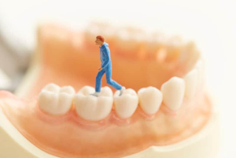 歯石を取るのはなぜか