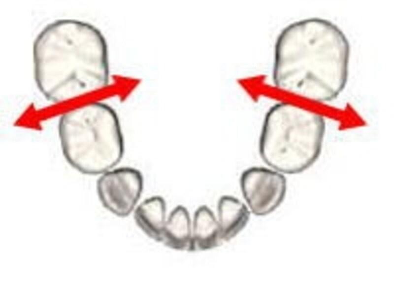 乳歯の最も虫歯になりやすい場所にを横から擦る