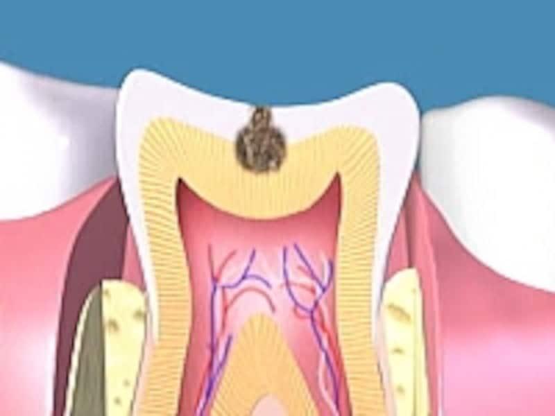 虫歯は象牙質に達するC2までしみないことが多い