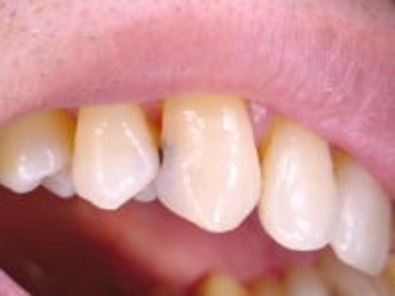 歯と歯にできた虫歯の穴