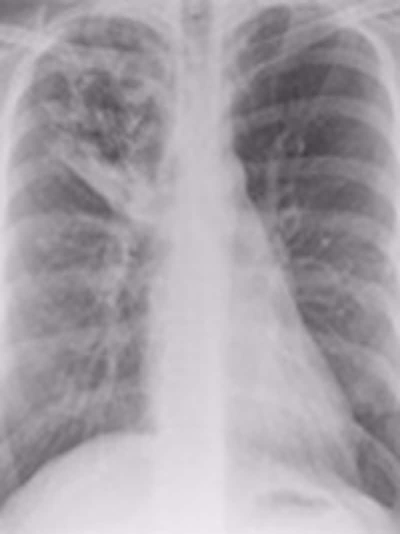 結核発症時のレントゲン写真。写真の左上(右肺)に異常があります。