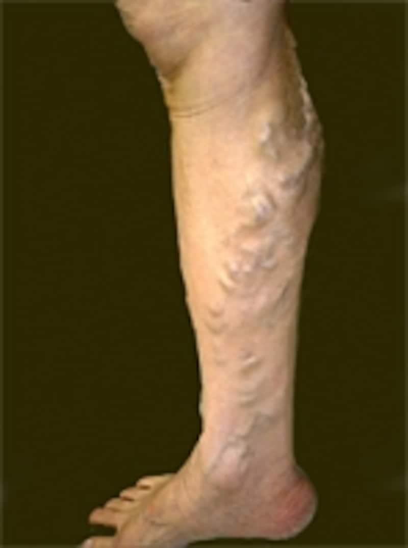 下腿静脈瘤。じっと立つ事が良くないのですが歩くのなら立位も悪くありません