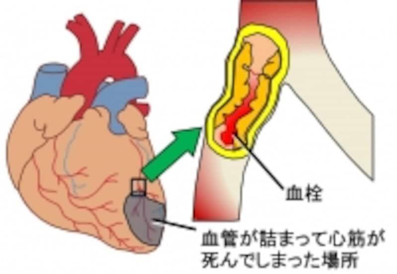 急性心筋梗塞では心臓の筋肉が死んでしまいます