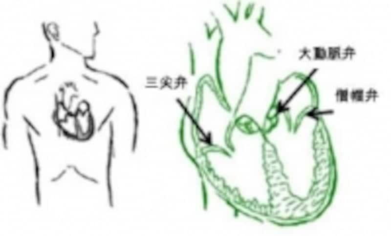心臓の弁のうちとくに重要な3つを示します。弁が壊れると心臓が壊れて行き、心不全となります