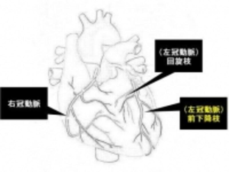 冠動脈の主なものを示します。図のように3つの系統があります