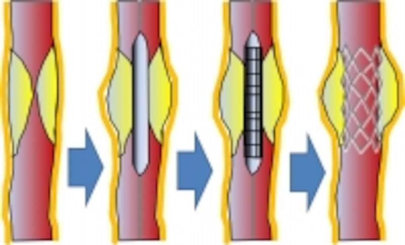 ステントによる治療では動脈硬化で狭くなった部分を広げて安定させます