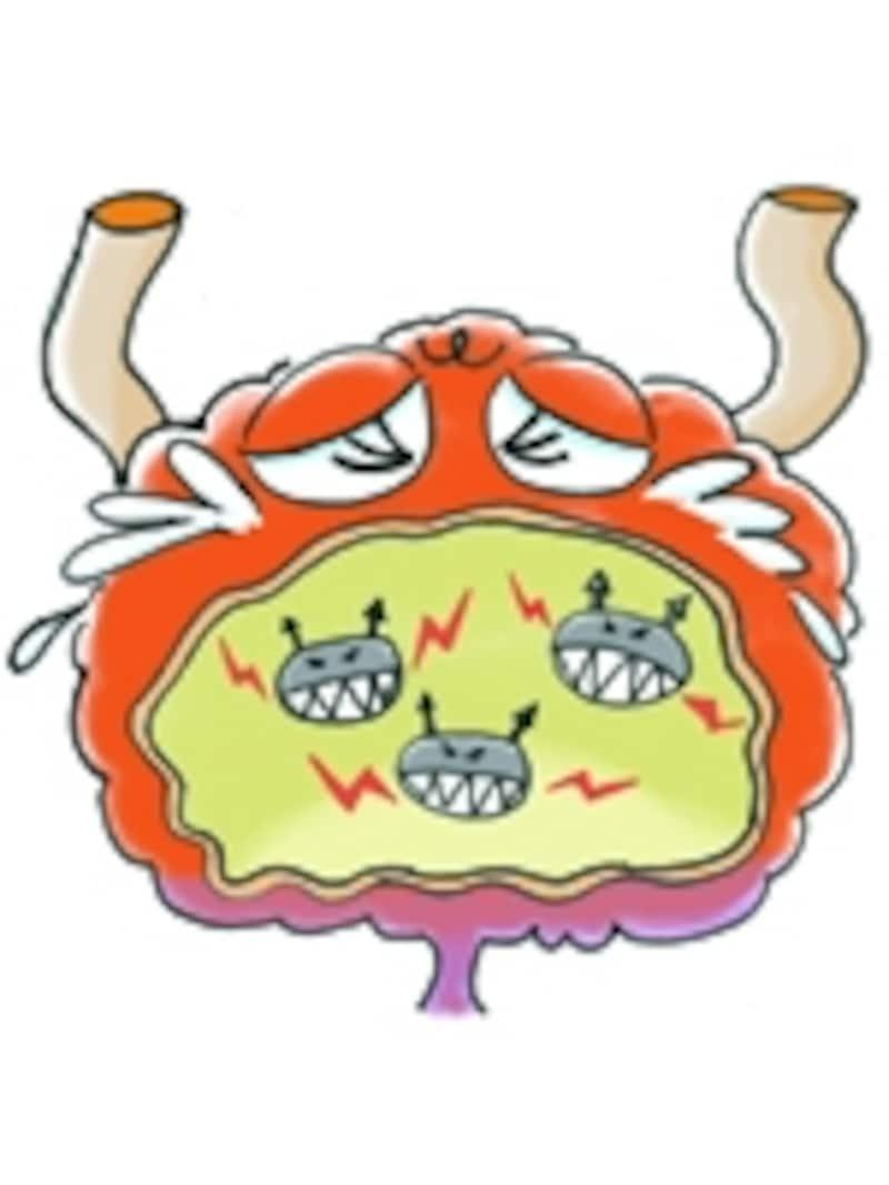 膀胱炎は膀胱内部に侵入、繁殖した細菌が起こす炎症