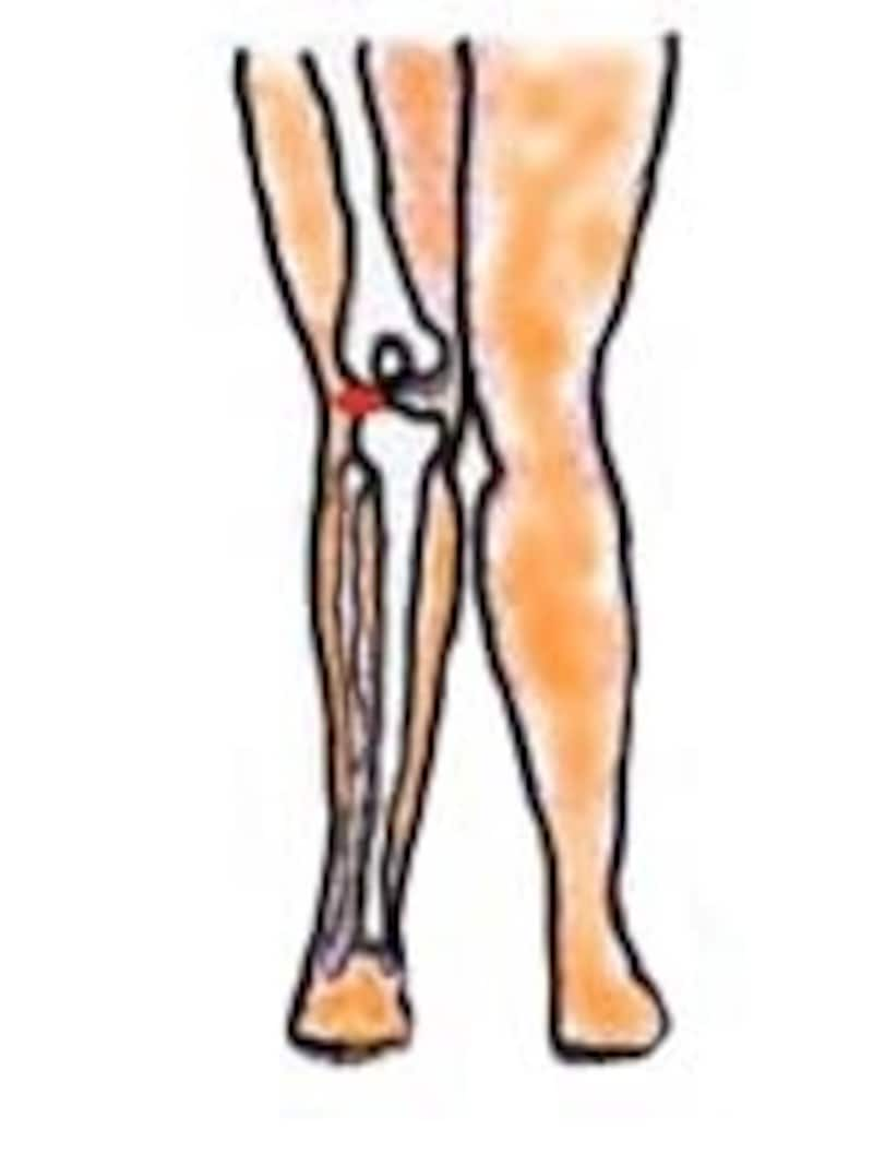 X脚では赤色の部分に負荷がかかりやすいです