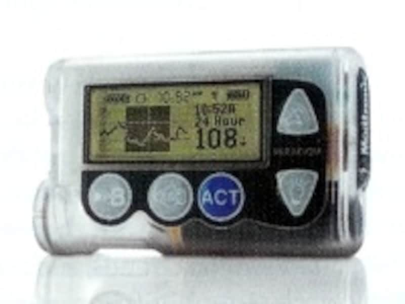 MiniMedParadigmこのポンプは小さなリモコンで着衣のまま操作できます