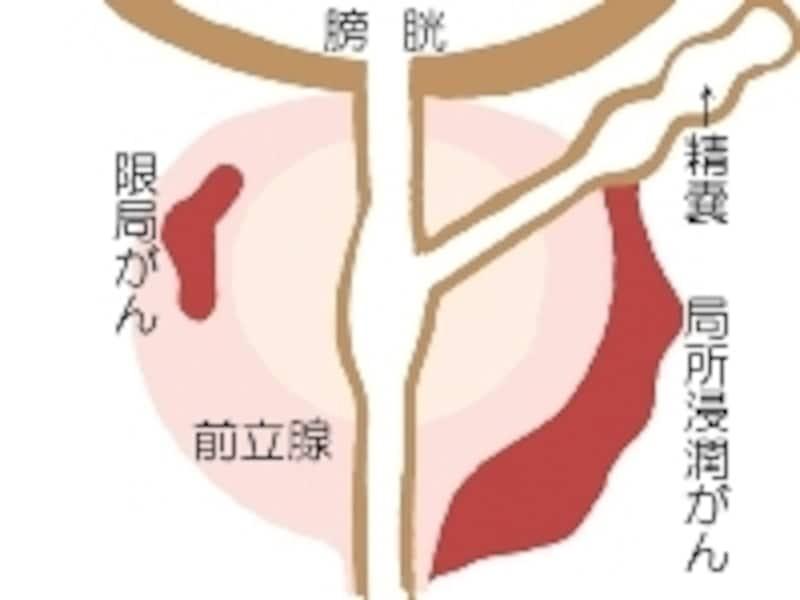 前立腺がんは「辺縁領域」と呼ばれる部分の細胞が無秩序に増殖を繰り返す病気