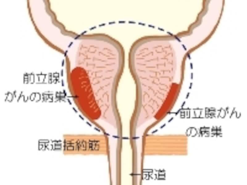 手術療法では、点線内を切除する前立腺全摘手術が最も治療効果が高い